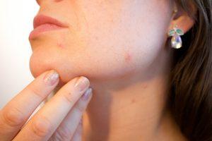acne-1606765
