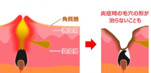 ニキビの角質層
